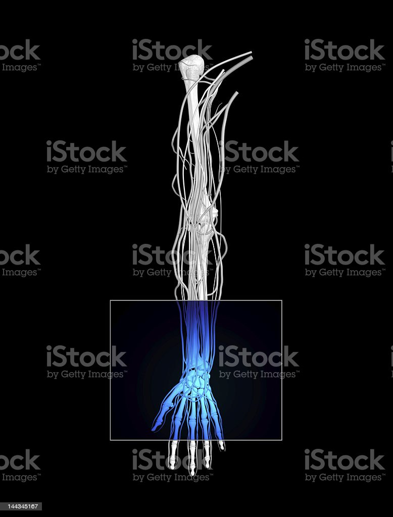 Wrist Mri Stock Photo & More Pictures of Anatomy   iStock