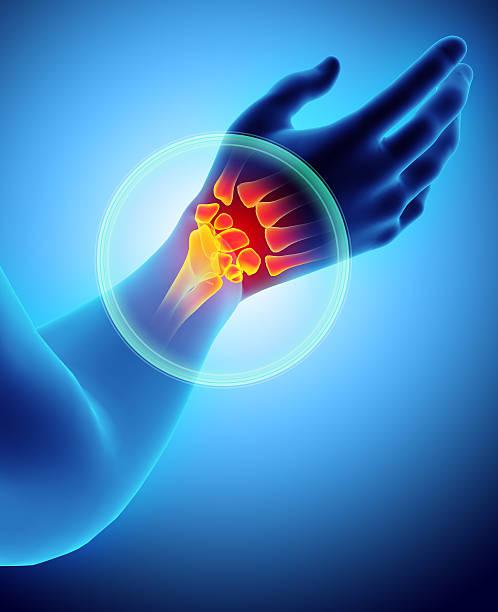 wrist painful - skeleton x-ray. - pouce partie du corps photos et images de collection