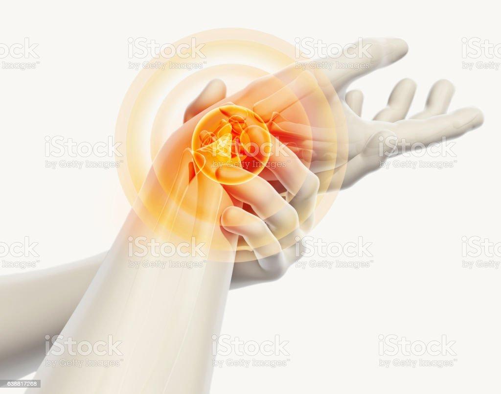 Poignet douloureux - skeleton x-ray. photo libre de droits