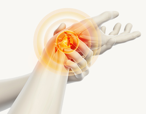 istock Wrist painful - skeleton x-ray. 638817268