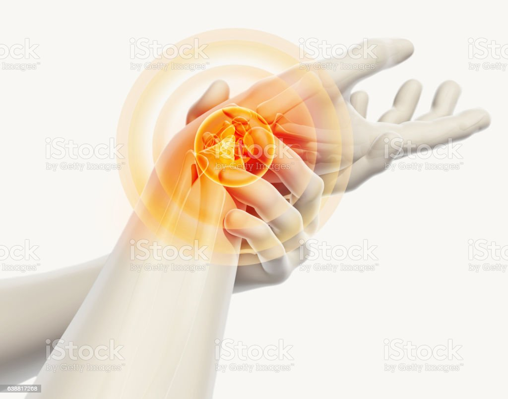 Wrist painful - skeleton x-ray. stock photo