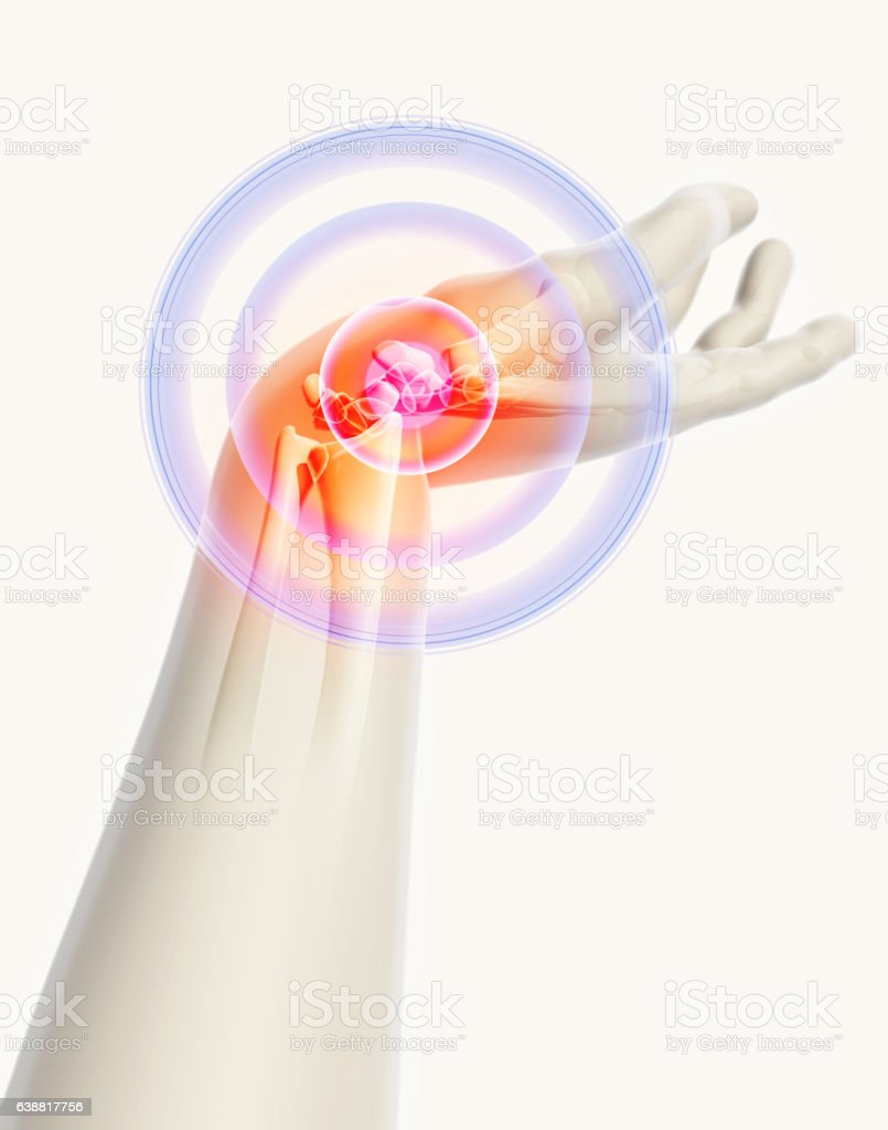 Wrist Painful Skeleton Xray Stock Photo & More Pictures of Anatomy ...