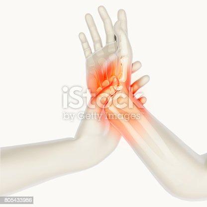 istock Wrist painful - skeleton x-ray. 805433986