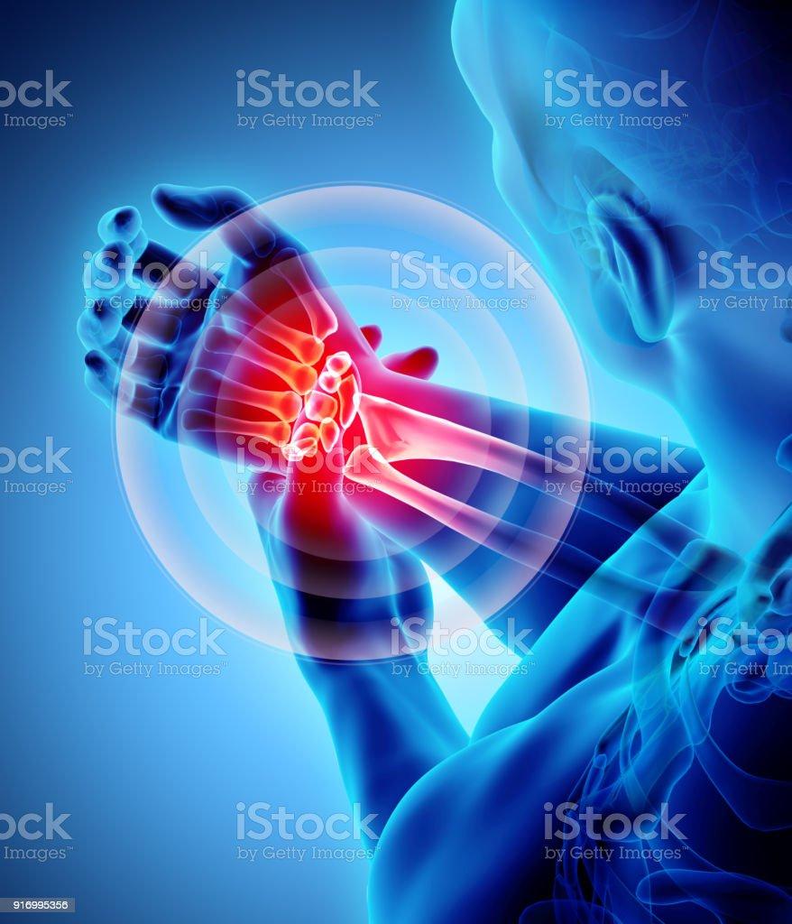 Handgelenk Schmerzhaften Skelett Xray Stock-Fotografie und mehr ...
