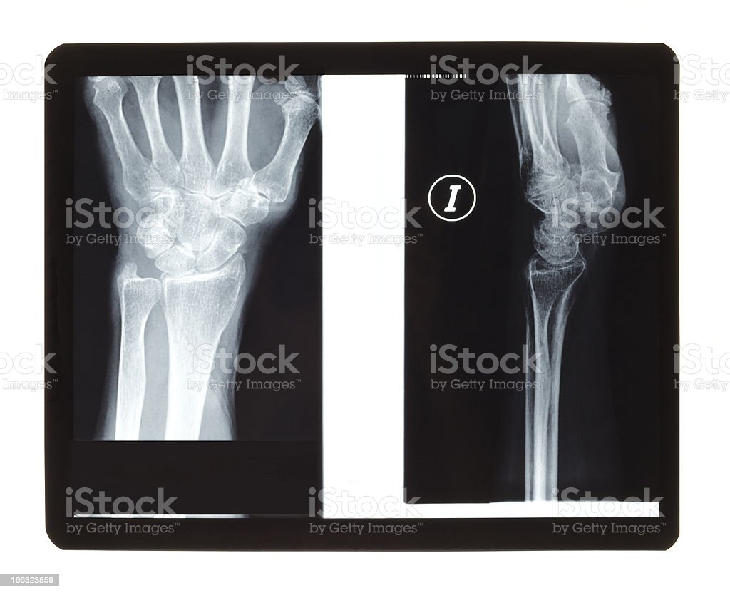 Wrist radiography royalty-free stock photo