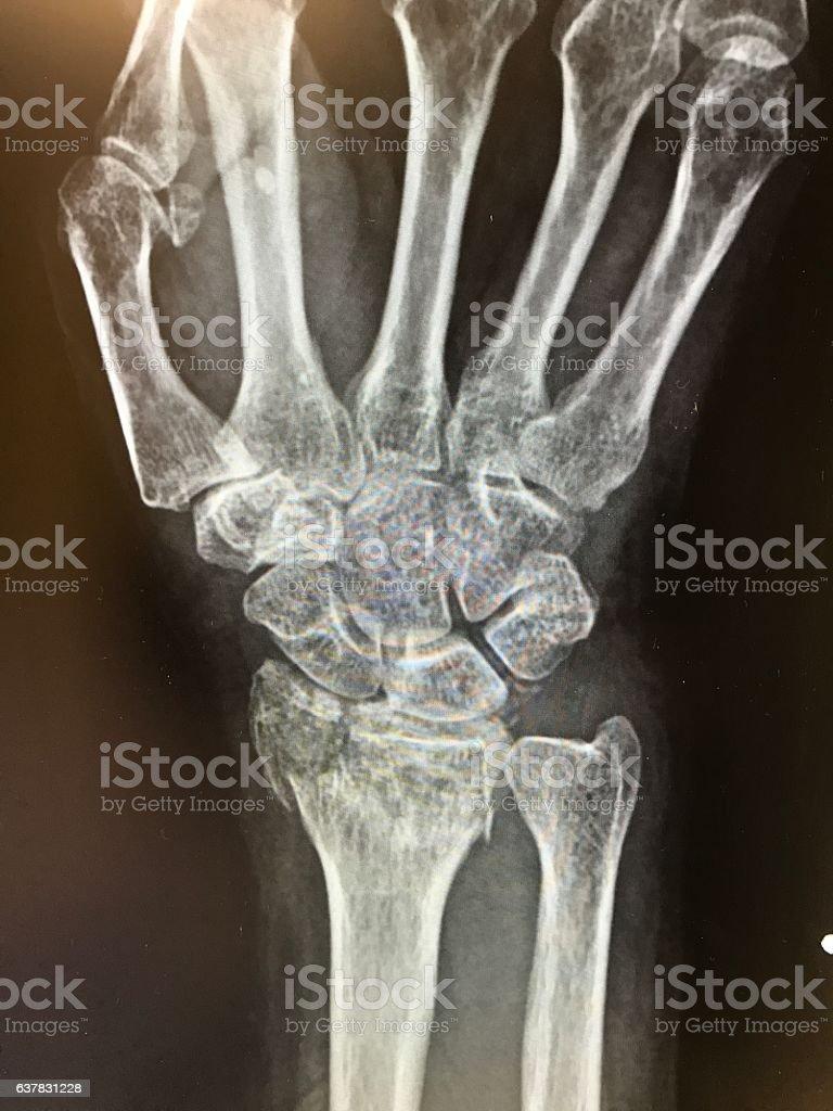 Wrist X-ray of distal radius fracture of hand stock photo