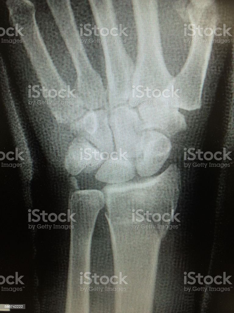 Wrist x-rays of colle's fractures on distal radius of hand stock photo