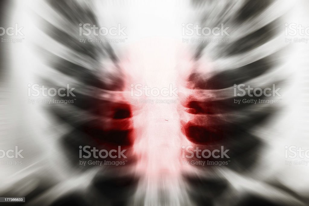 x ray of chest royalty-free stock photo