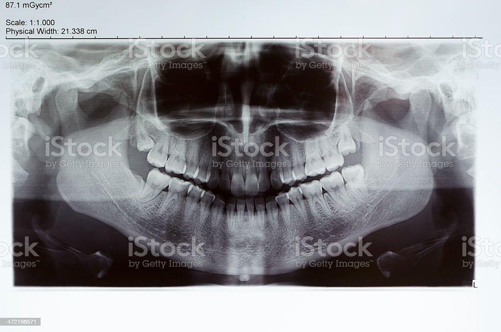 x ray stock photo