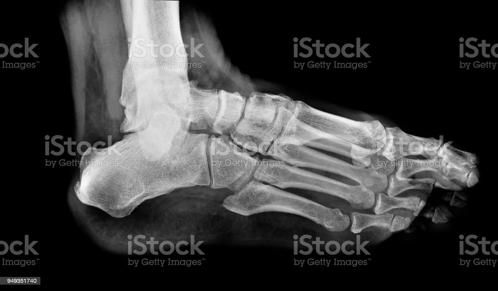 x ray , x-ray image photo of feet side / lateral view. stock photo