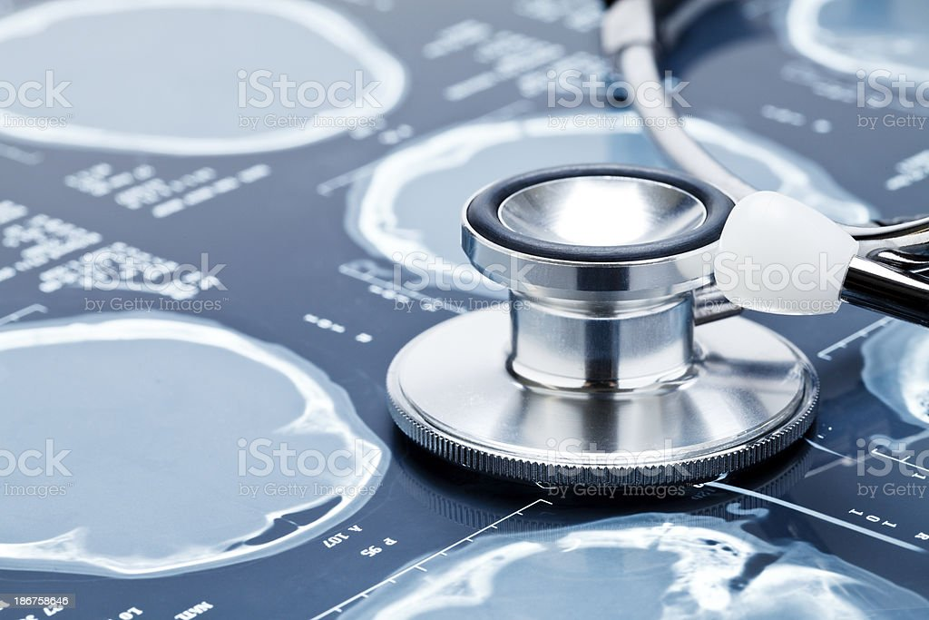 x-ray and stethoscope. royalty-free stock photo