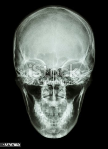 istock X-ray asian skull (Thai people) 483767869