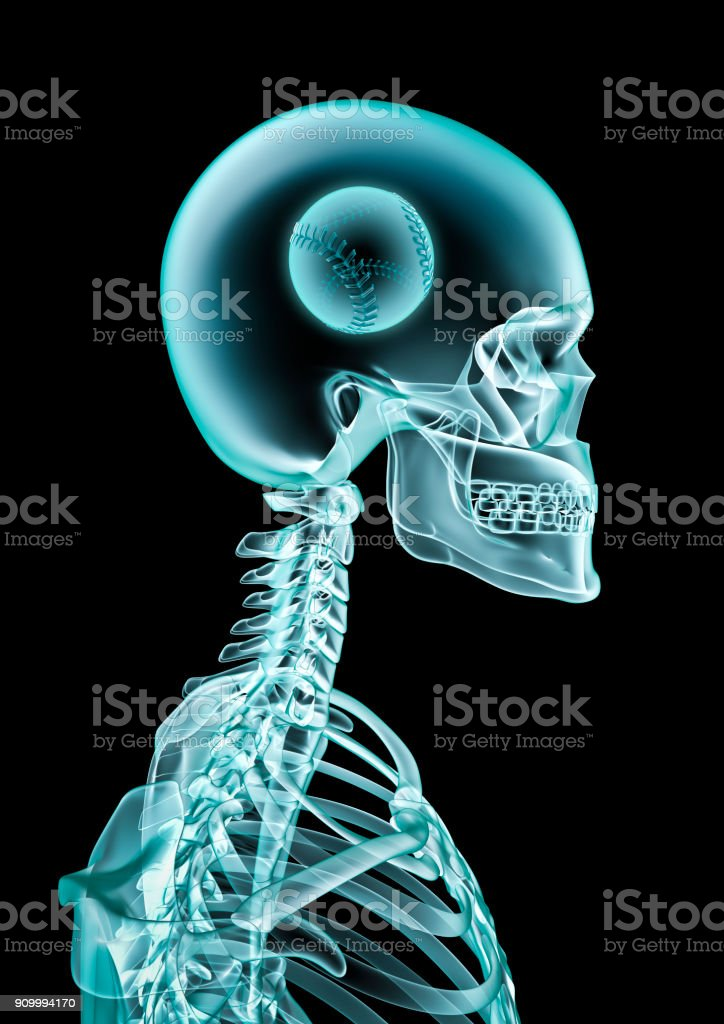 X-ray baseball fan stock photo
