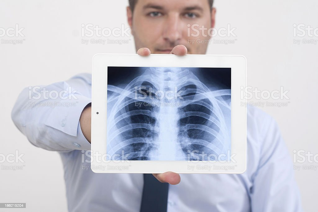 X-Ray before the Human Chest royalty-free stock photo