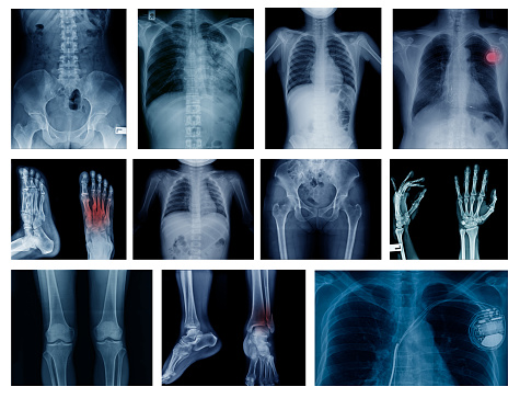 High quality collection x-ray image show many body part of human