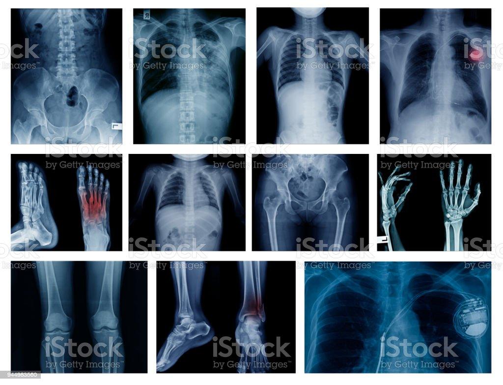 x-ray big collection stock photo