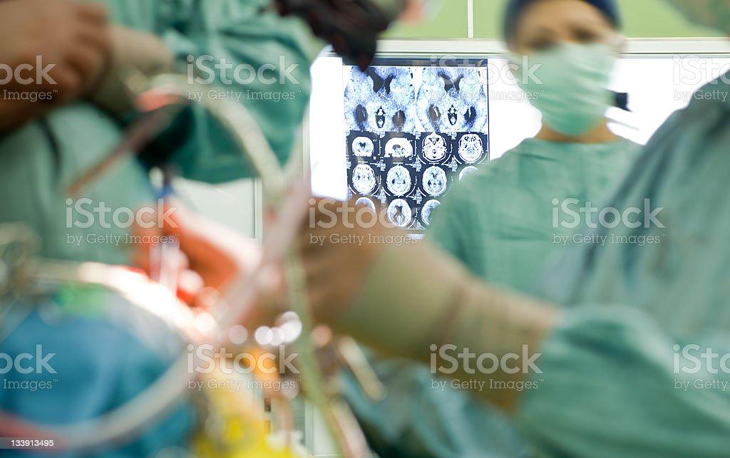 x-ray brain surgery stock photo