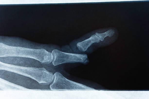 X-Ray Broken Finger stock photo
