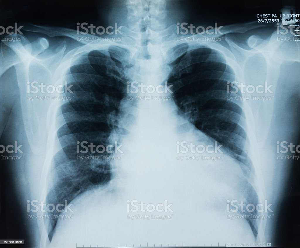x-ray chest stock photo