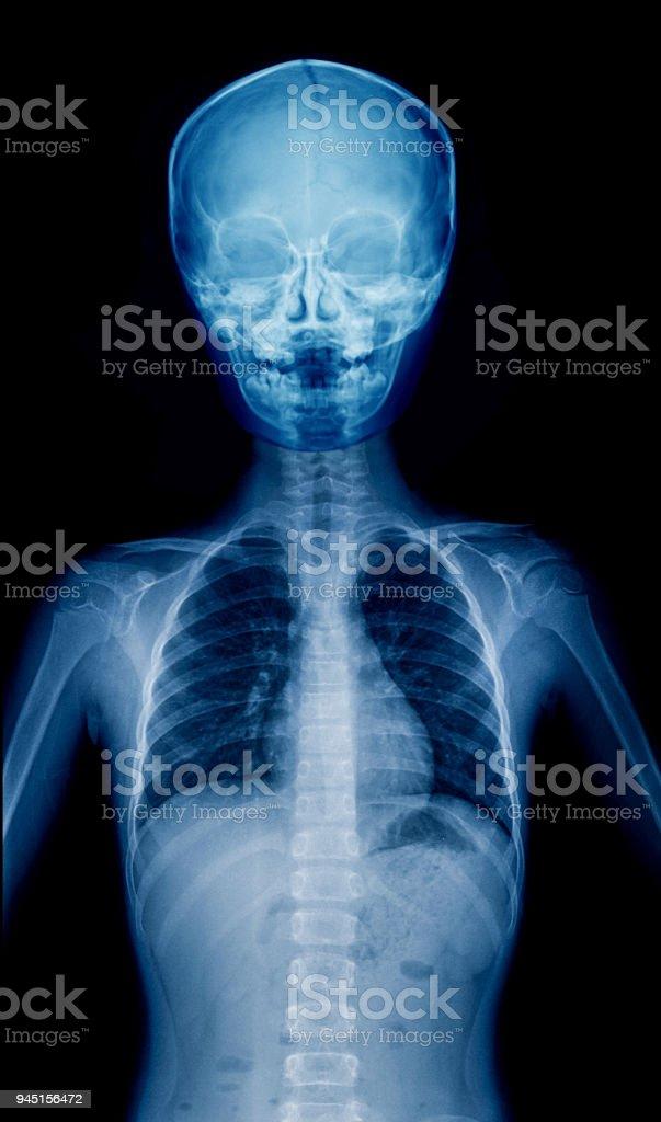 X-ray child stock photo