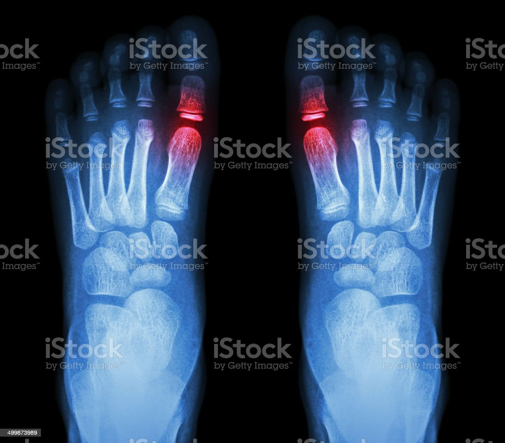 X-ray child's foots and arthritis stock photo