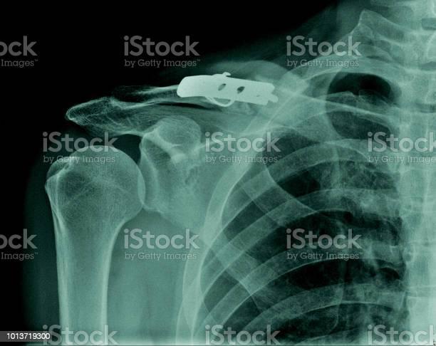 固定 鎖骨 骨折 鎖骨骨折で手術したくない!折れた場所による処置と治療法