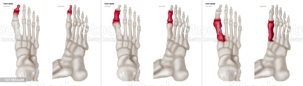 Xray Collection Of Big Toe Foot Bone With Red Highlights On ...