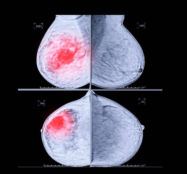 Digitales Röntgen-Mammographie CC Seitenansicht und MLO. für Brustkrebs zeigen BI-RADS 4 verdächtige Mammographie oder Brust zu scannen. – Foto