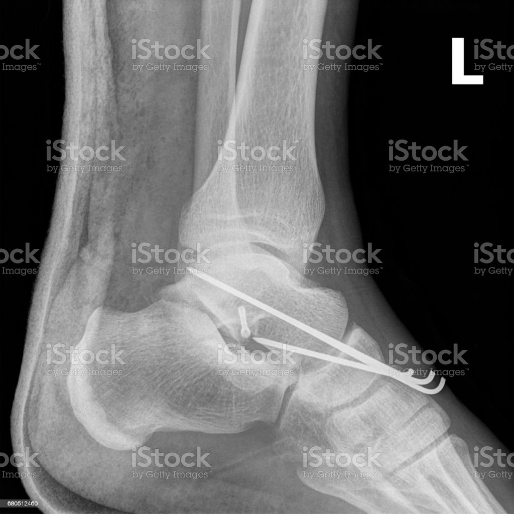X-ray elements connecting the damaged ankle joint. stock photo