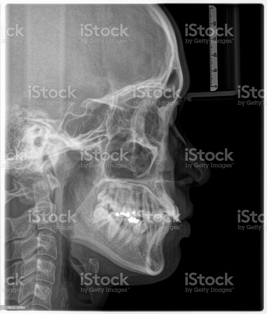 X-ray film Head and mouth
