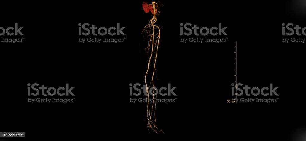 X-ray film of human - Zbiór zdjęć royalty-free (Anatomia człowieka)