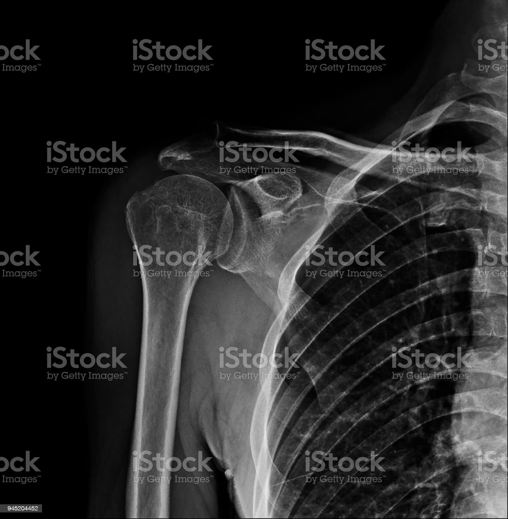 X-ray film of normal shoulder joint pain stock photo