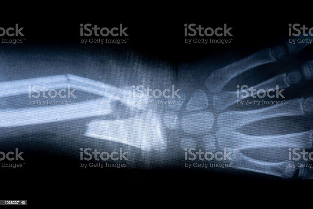 x-ray film skeleton human arm. health medical anatomy body concept
