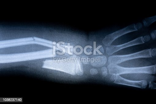 x-ray film skeleton human arm. health medical anatomy body concept