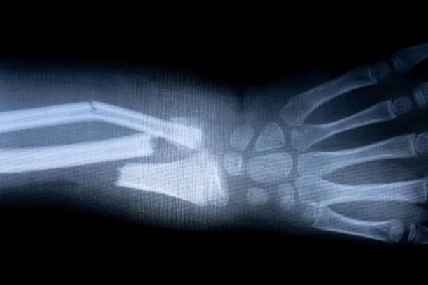 x-ray film skelett mänsklig arm. medicinsk anatomi kropp hälsokoncept - brott bildbanksfoton och bilder