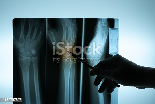 X-ray film with doctor's hand