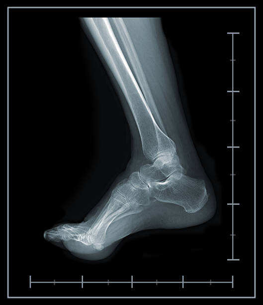 X-ray foot and ankle lateral view stock photo