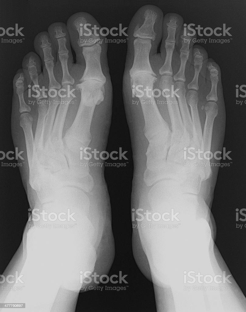 X-ray foot stock photo
