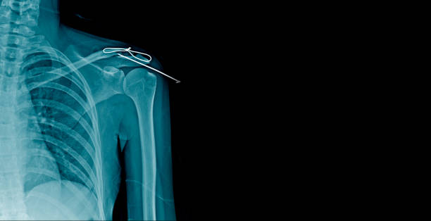 x-ray fracture clavicle with post op fixation - shoulder surgery stock photos and pictures
