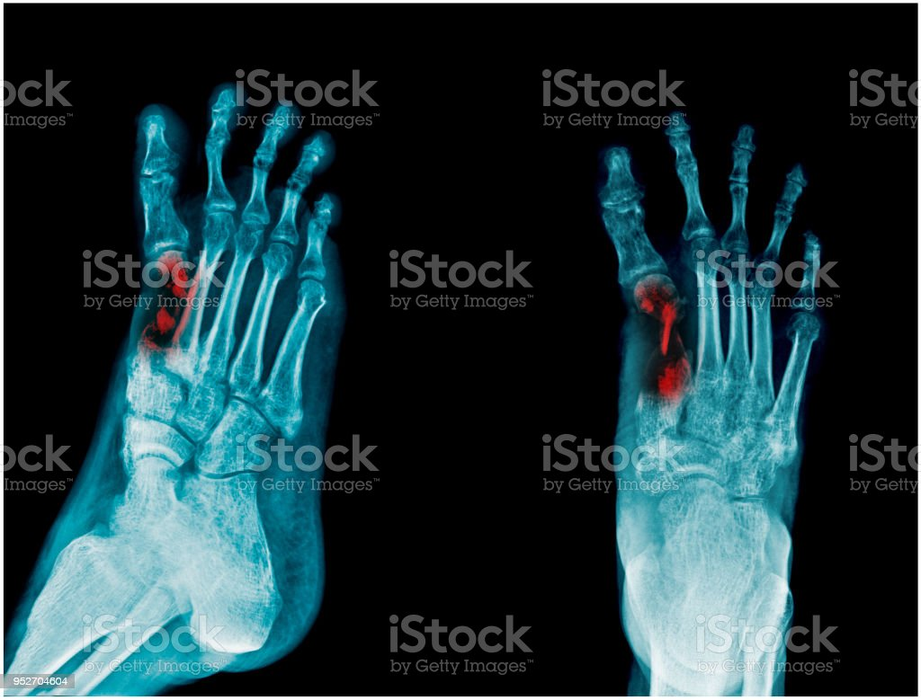 Xray Fracture Or Osteomyelitis Of Big Toe Metatasal Bone Stock Photo ...