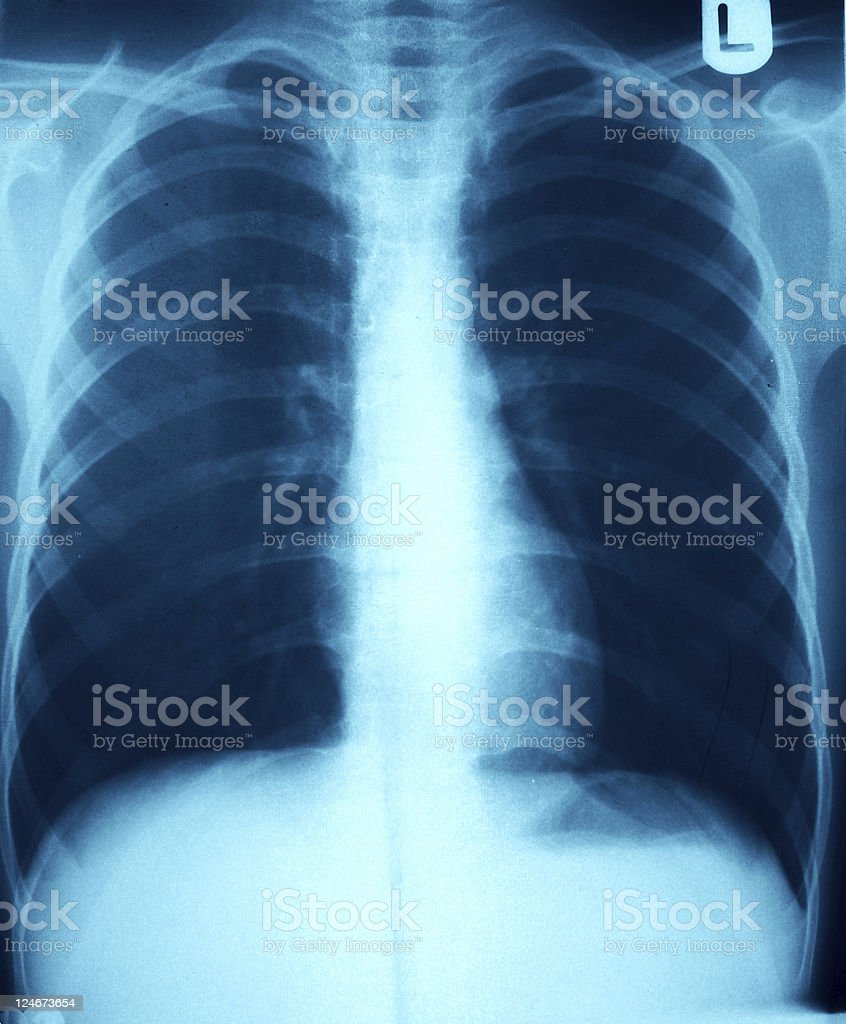 X-Ray Grunge - Blue Chest stock photo