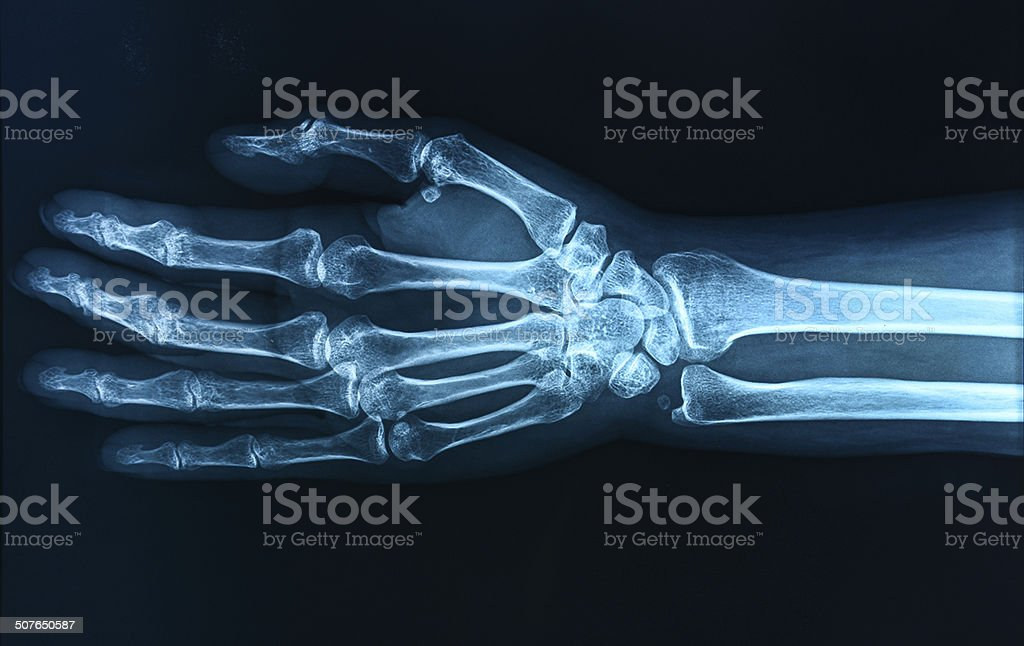 X-ray hand / Many others X-ray images in my portfolio. stock photo