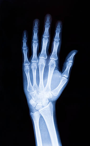 X-ray hand (XXXL) stock photo