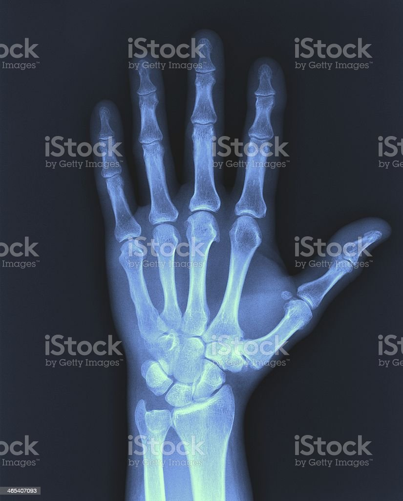 X-ray hand. stock photo
