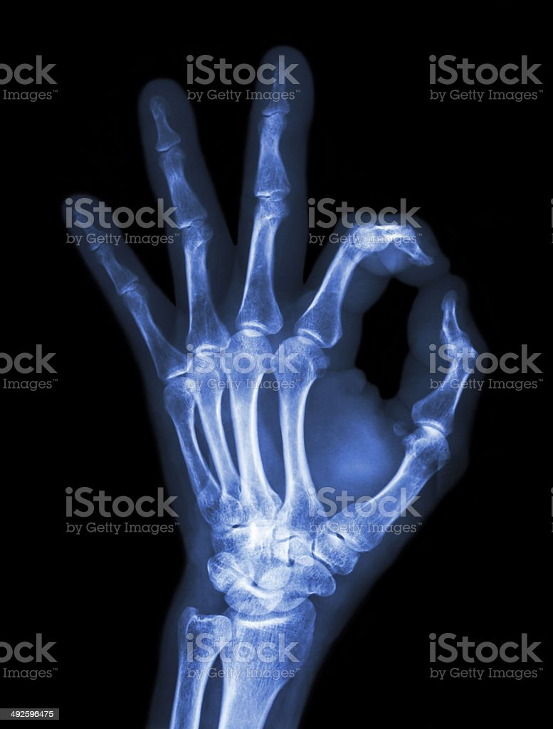X-ray hand with OK symbol stock photo