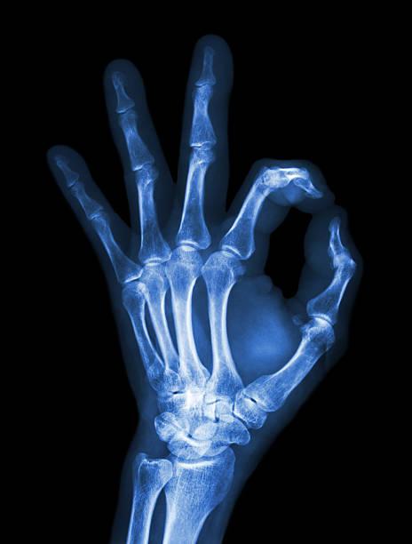 x-ray hand mit ok symbol - skelett hand stock-fotos und bilder