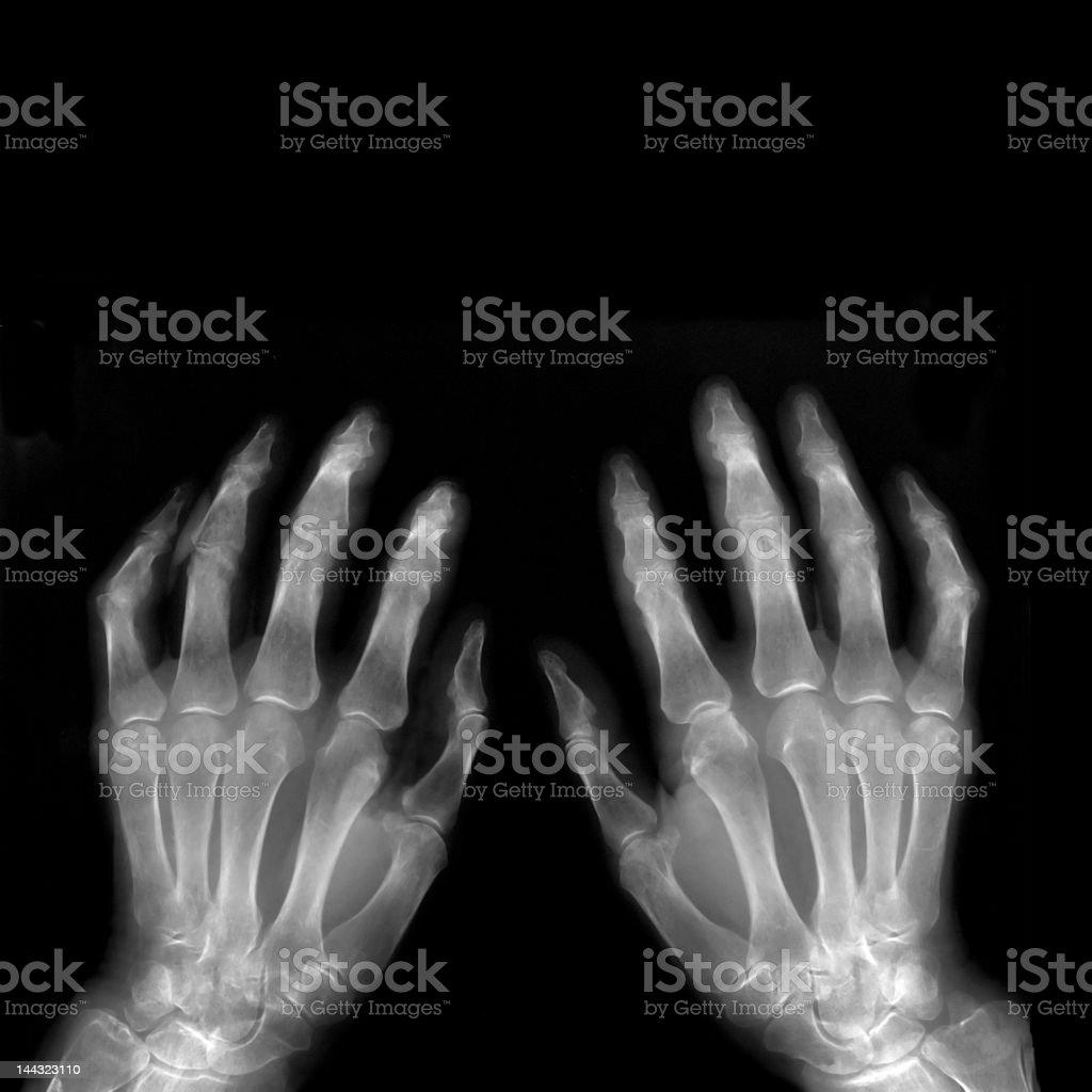 X-ray hands royalty-free stock photo