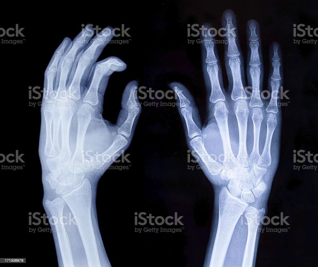 Xray Hands Stock Photo More Pictures Of Anatomy Istock