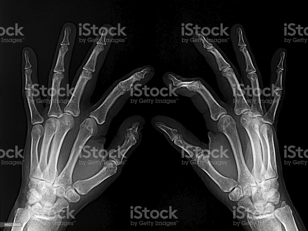 X-ray hands stock photo