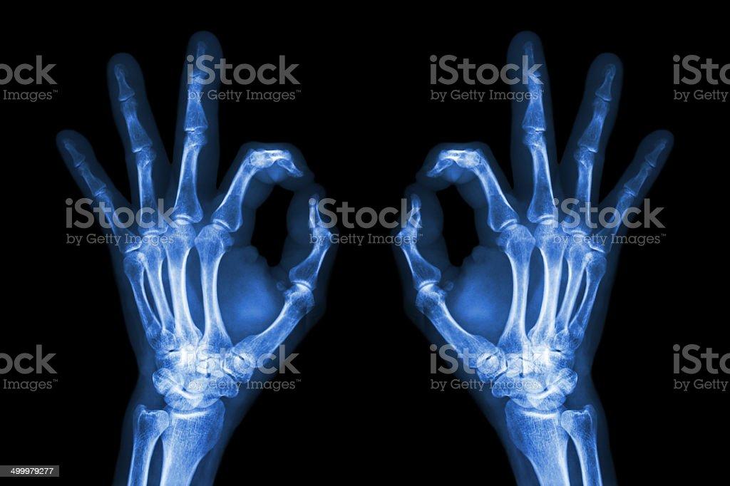 Xray Ręce Z Znak Ok Zdjęcia Stockowe Istock